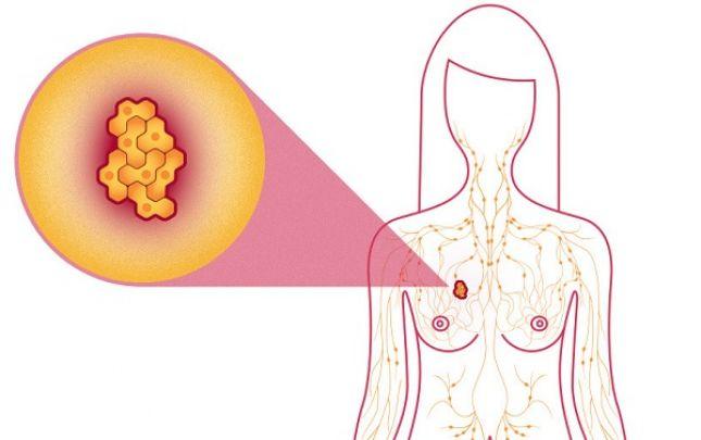jóindulatú rák kör szemölcsök intim fórumhelyeken