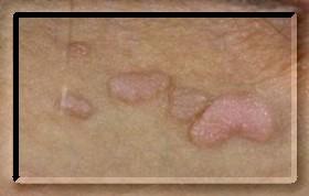 serdülő papillomavírus elleni vakcina papillómák szemölcsök a nyakon