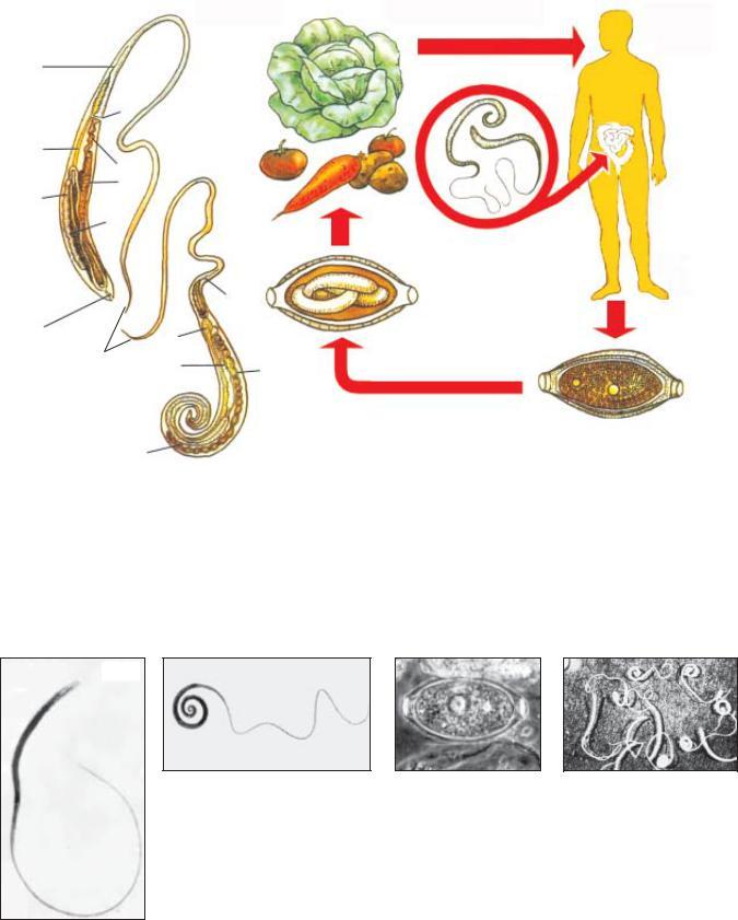 parazitológia trichocephalosis