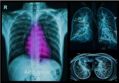 A tüdő rosszindulatú daganatai