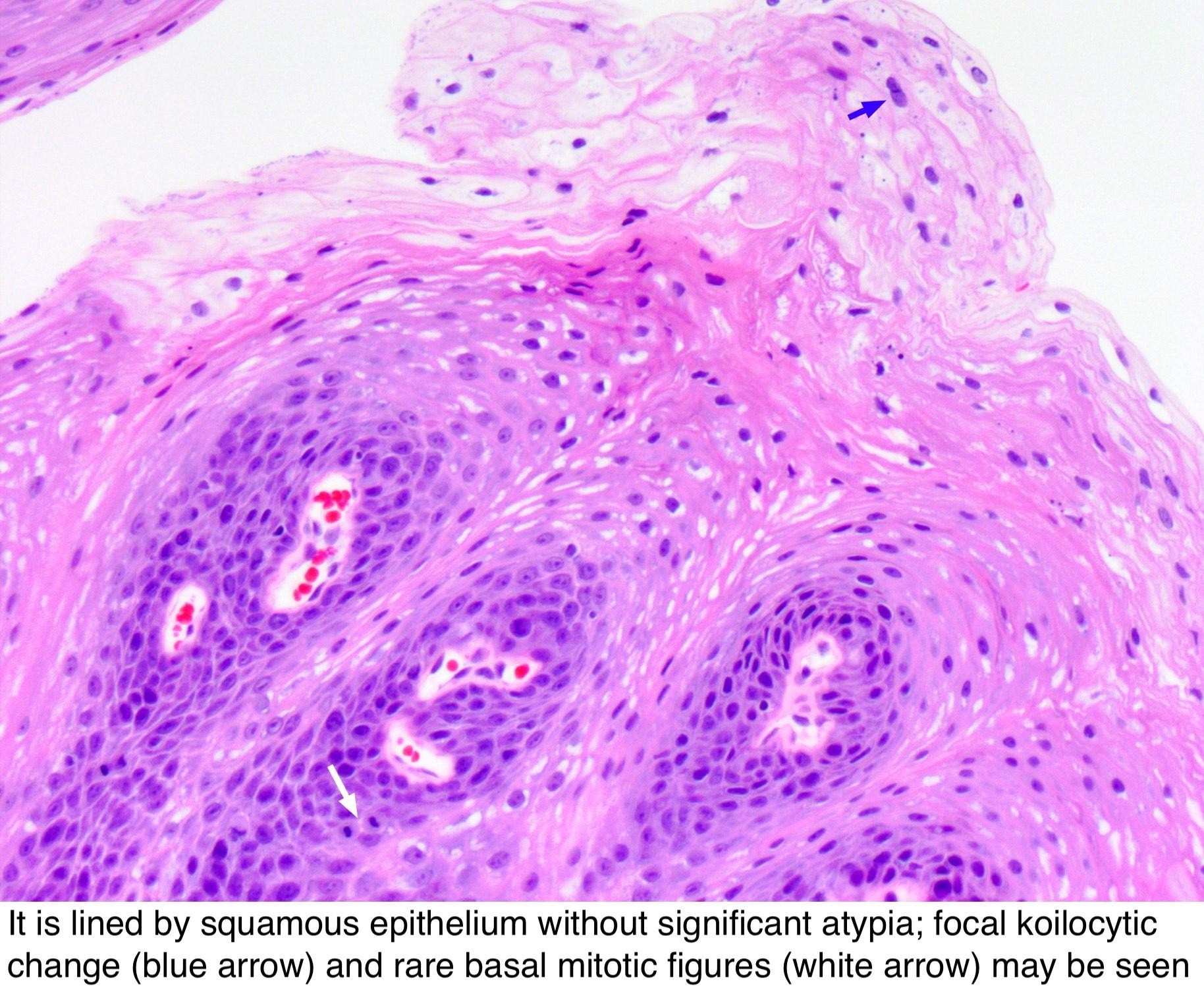 Nyaki rákvizsgálatok, Hasi rák túlélési aránya
