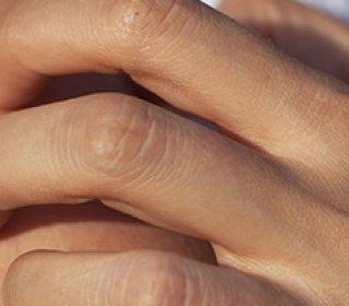 Egy alattomos és csúnya betegség: a szemölcs