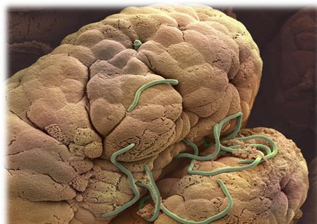 hpv vírus és zwanger willen worden gyógyszerek emberi paraziták kezelésére
