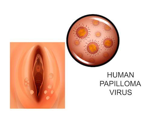 Human papilloma kezelese. Human papilloma kezelese - Category: DEFAULT