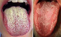 Condyloma a nyelv alatt