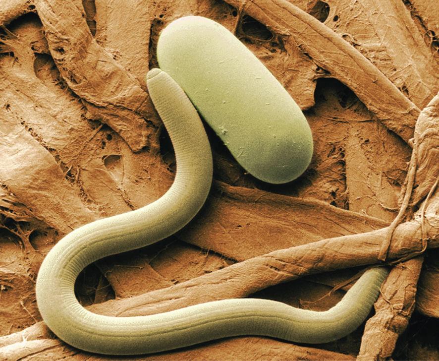 Szemférgek kezelése Paraziták, amelyek elveszítik a kezelést