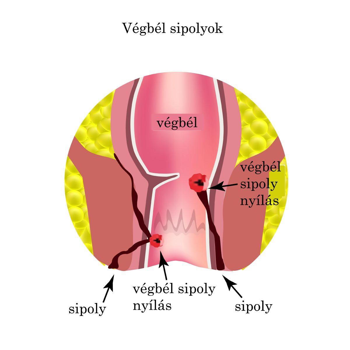 A vastagbélrák okai és tünetei