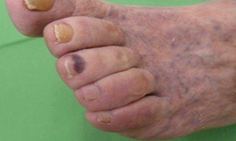 az ujjak közötti seb kezelése hpv rák tünetei férfi