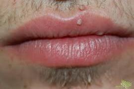 papilloma vírus tünetei férfiaknál