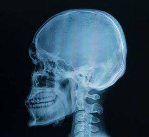 A röntgen és a CT is rákot okoz