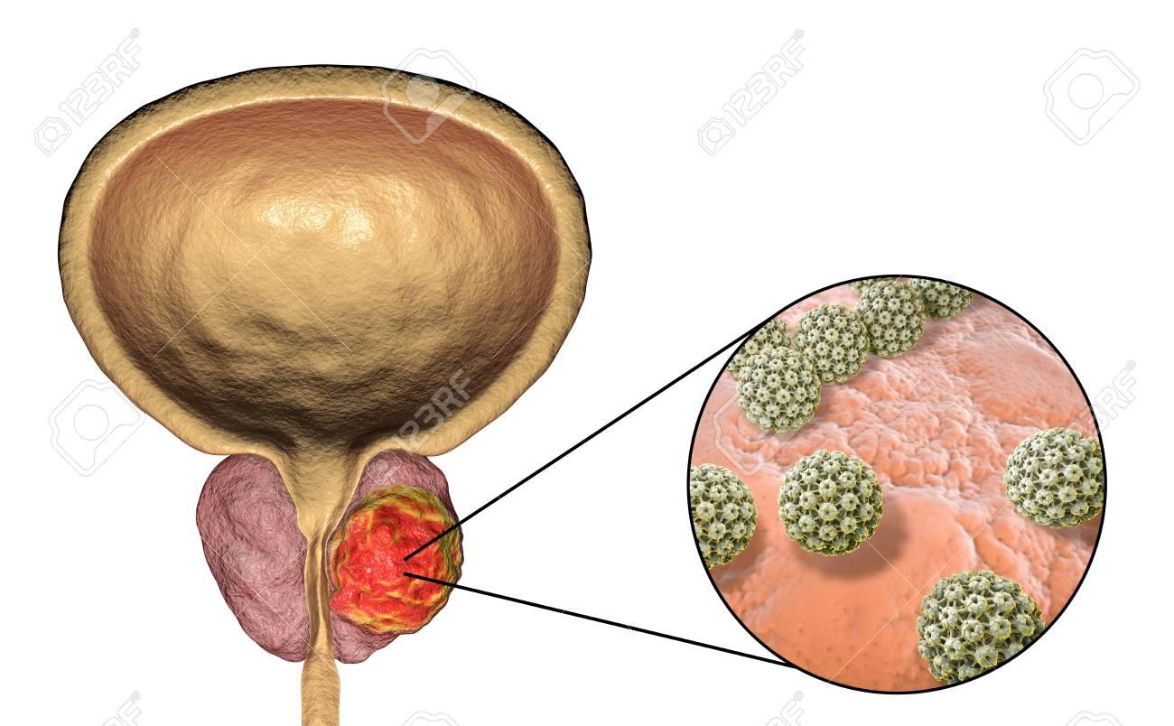 humán papilloma tumor