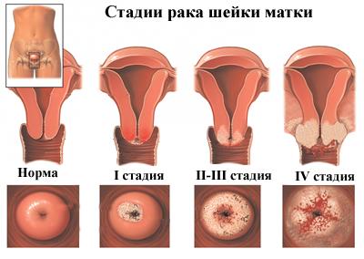 endometrium rák stádiumai