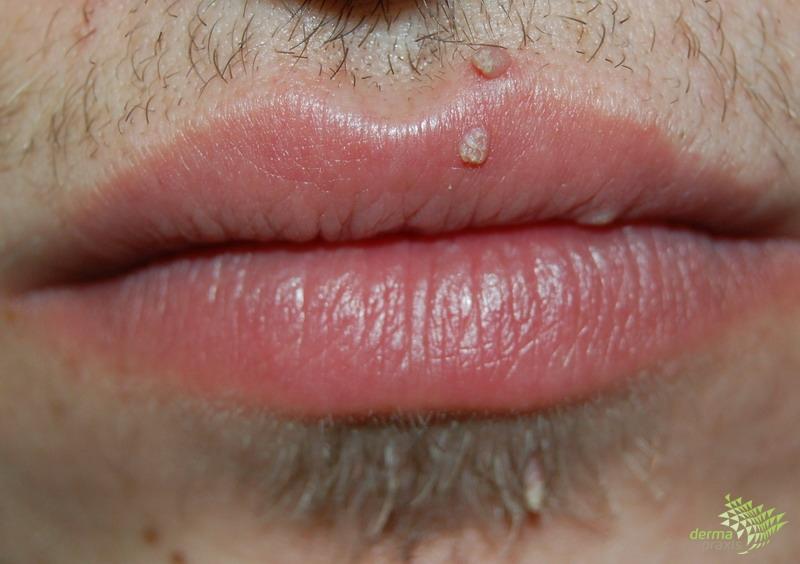 a condyloma kezelés leírása stressz dermatitis
