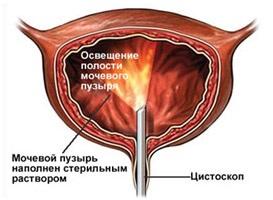 carbocomp.hu | Betegségek