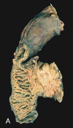 hasnyálmirigyrák antiprotozoális és féreghajtó