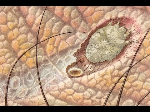 féregparaziták tisztítása pinworms kezelés kutyáknál