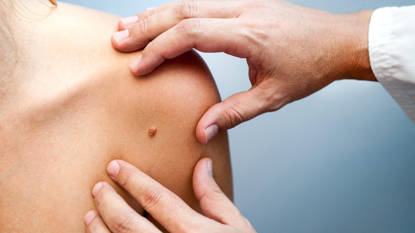 HPV vírus, HPV fertőzés terjedése | HPVdoktor