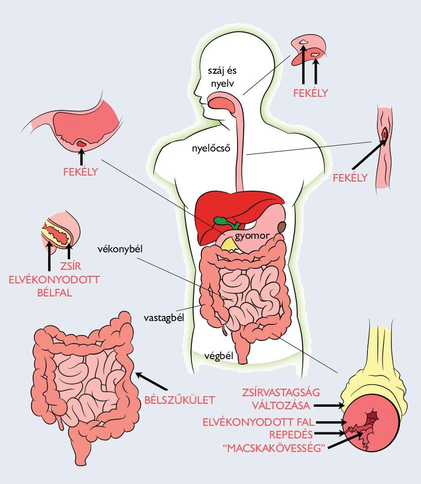 férgek típusai az emberi testben