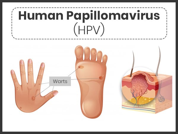 az összes papilloma vírus tünete