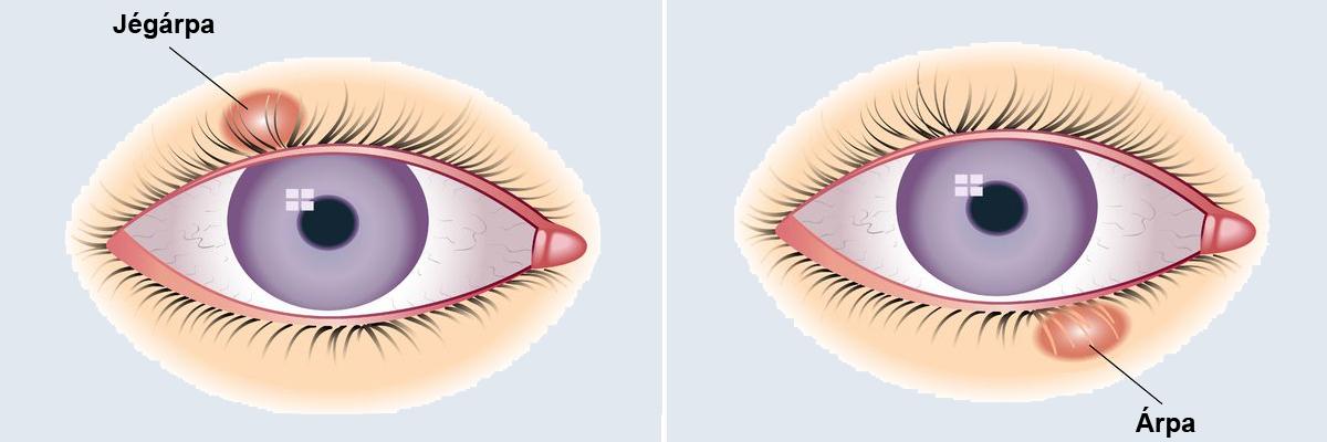 vélemények a szemhéj papillóma kezelésére ha eltávolítja a papillómákat a nemi szerveken