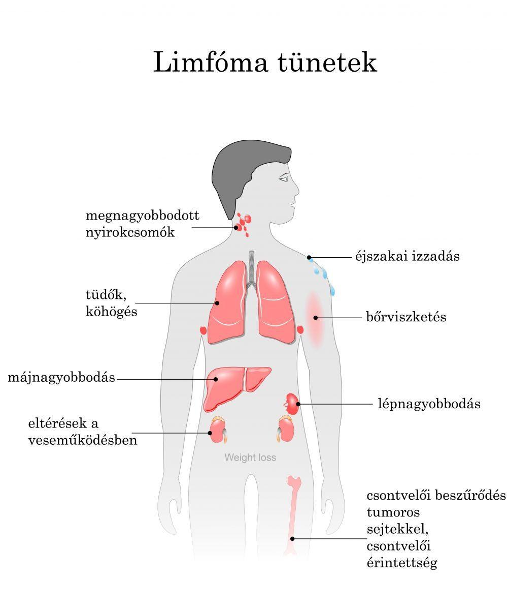 hasi rák diagnózisa befolyásolja a condyloma