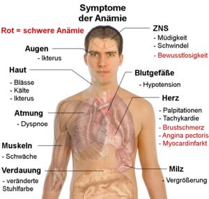 anamie klinische zeichen