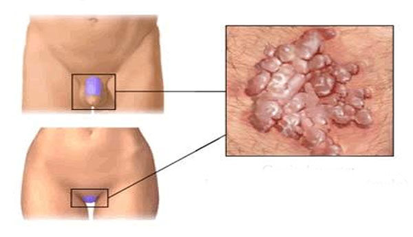 hpv nemi szervek diagnózisa