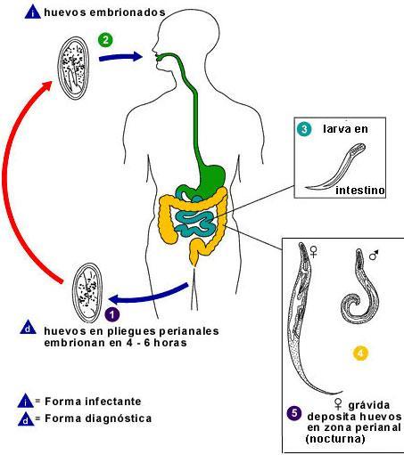 schistosomiasis vagyis