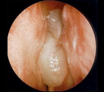 condyloma az orrban