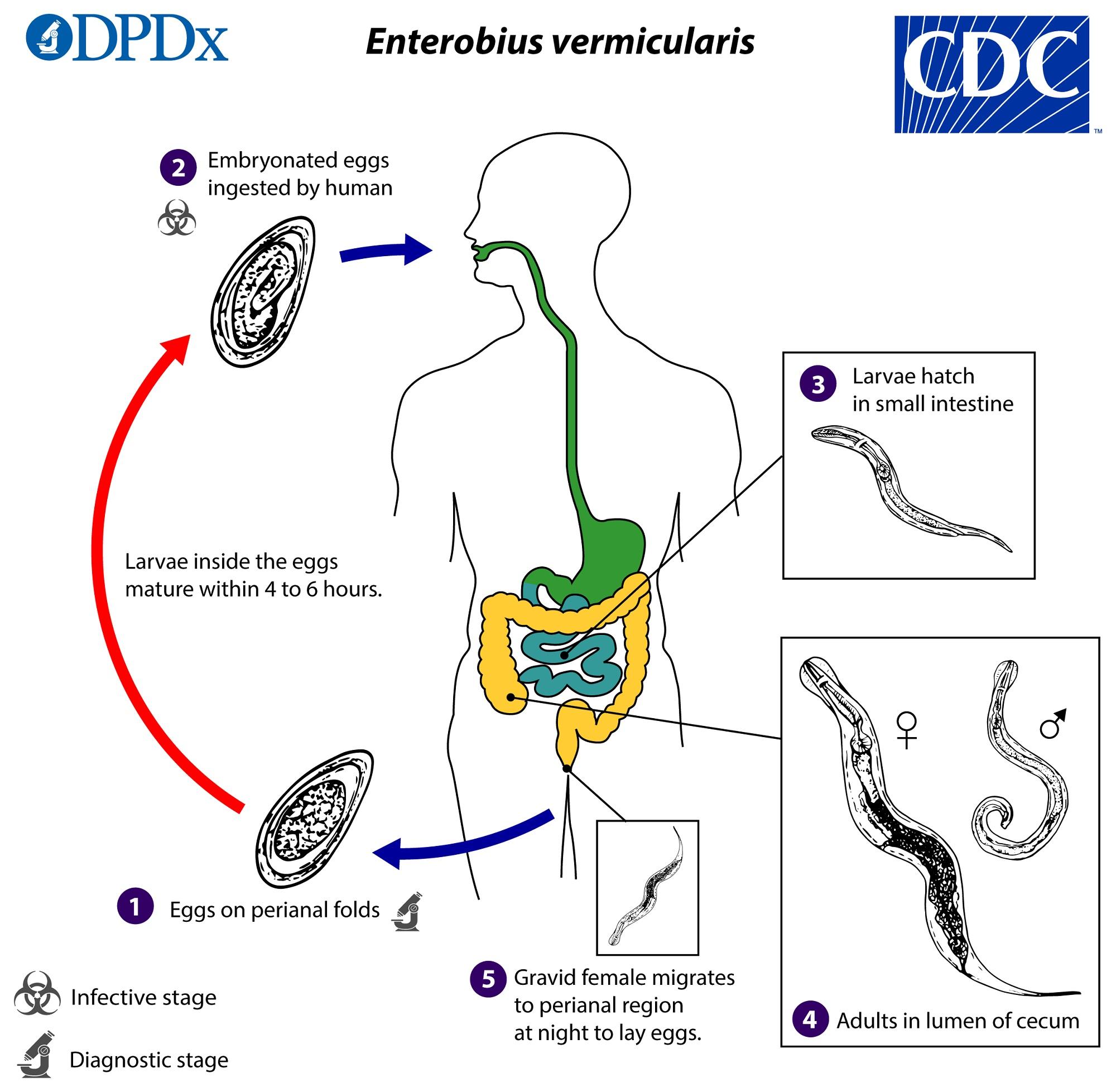Enterobiasis (pinworms) A pinworms a legegyszerűbb