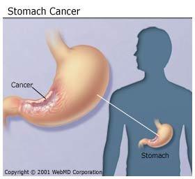 A gyomorrák diagnosztizálása, szövődményei és kezelése