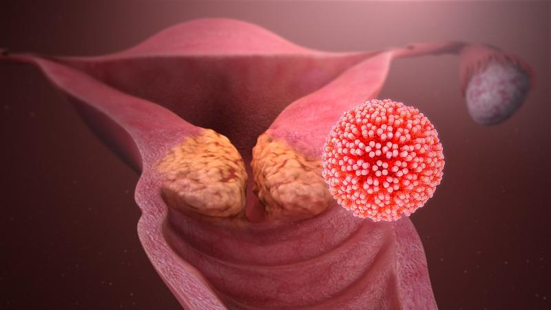 HPV vírus - Humán papilloma vírus   HPV Doktor