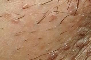 hirsutoid papilloma képek tünetei és kezelése