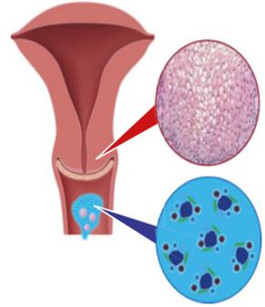 HPV-kezelés vagy sem)