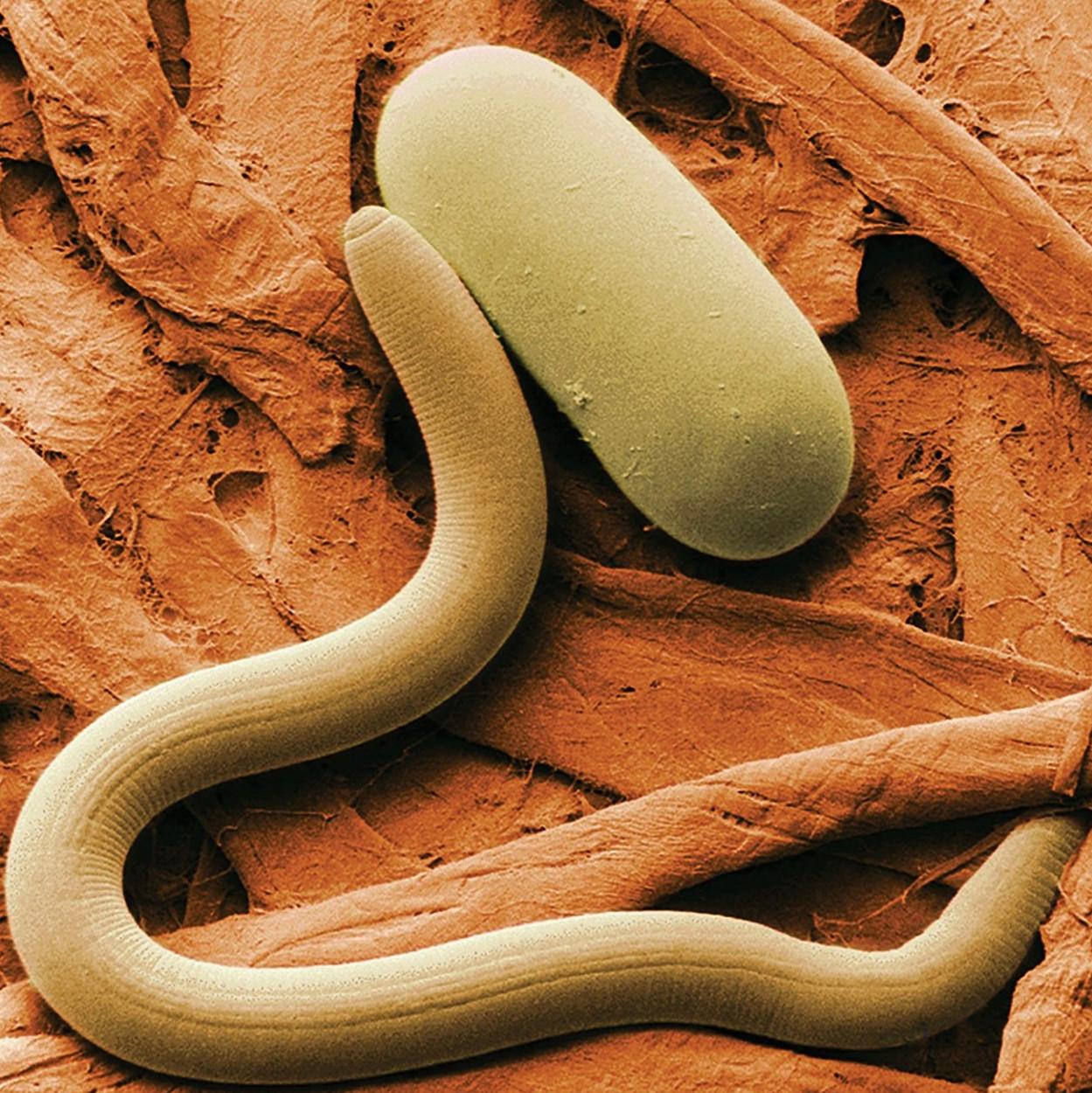 Nád giardia hogyan történik az enterobiosis?