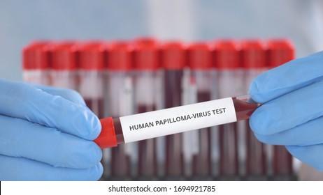 DUNA-LAB medical • Vérvétel, laboratóriumi vizsgálatok Budapest, Szentendre