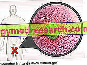 Agresszív daganat – Egy fiatal nő küzdelme a mellrákkal | Well&fit