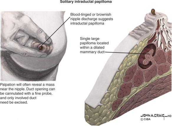 Hpv treatment homeopathic, Focal intraductal papilloma Alternative treatment for papillomavirus