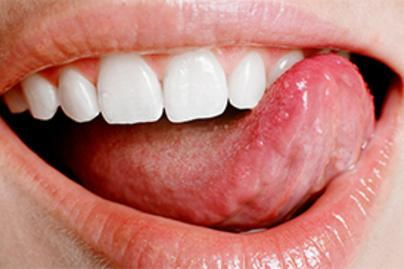 hpv a száj belsejében