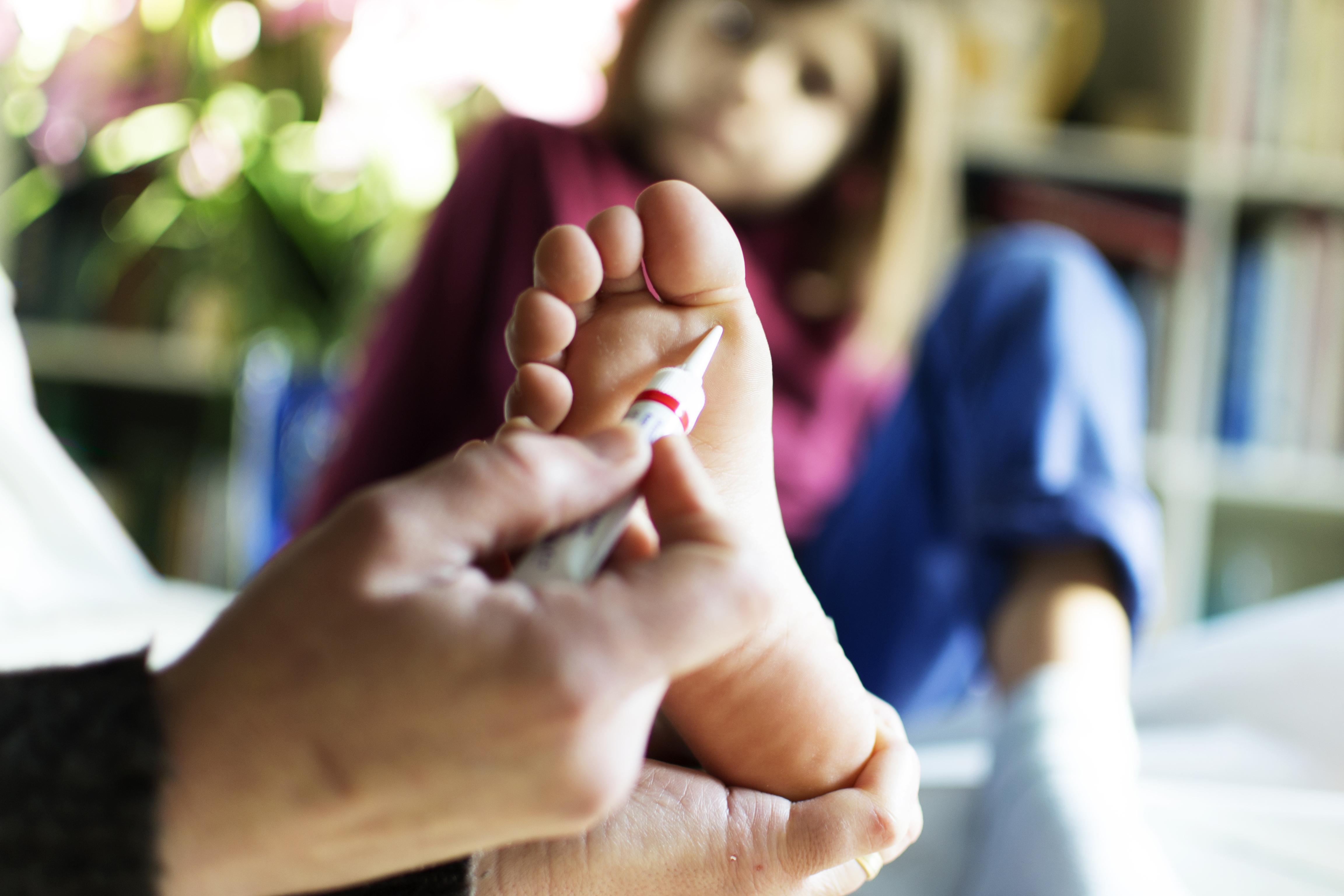 lábszemölcs kezelés szalag