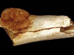 csontrák