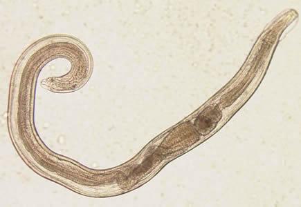 enterobius vermicularis terhesség alatt Gyermekkori gyöngy minták kezelése