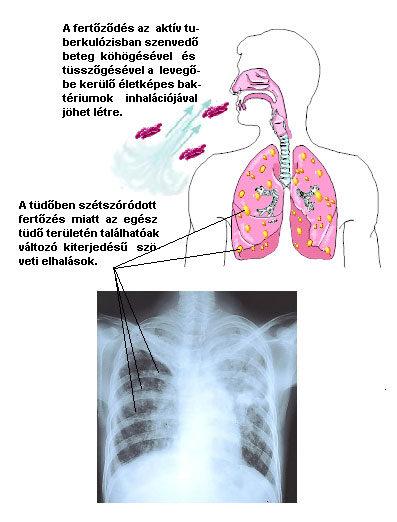 pikkelyes papilloma a bőrön hpv impfung trotz erkaltung