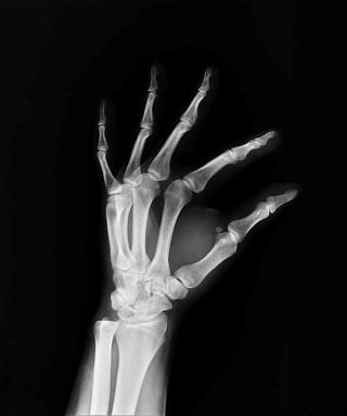 Általános tudnivalók a csontrákról | carbocomp.hu