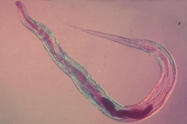 enterobius vermicularis gif lágyrész szarkóma rák