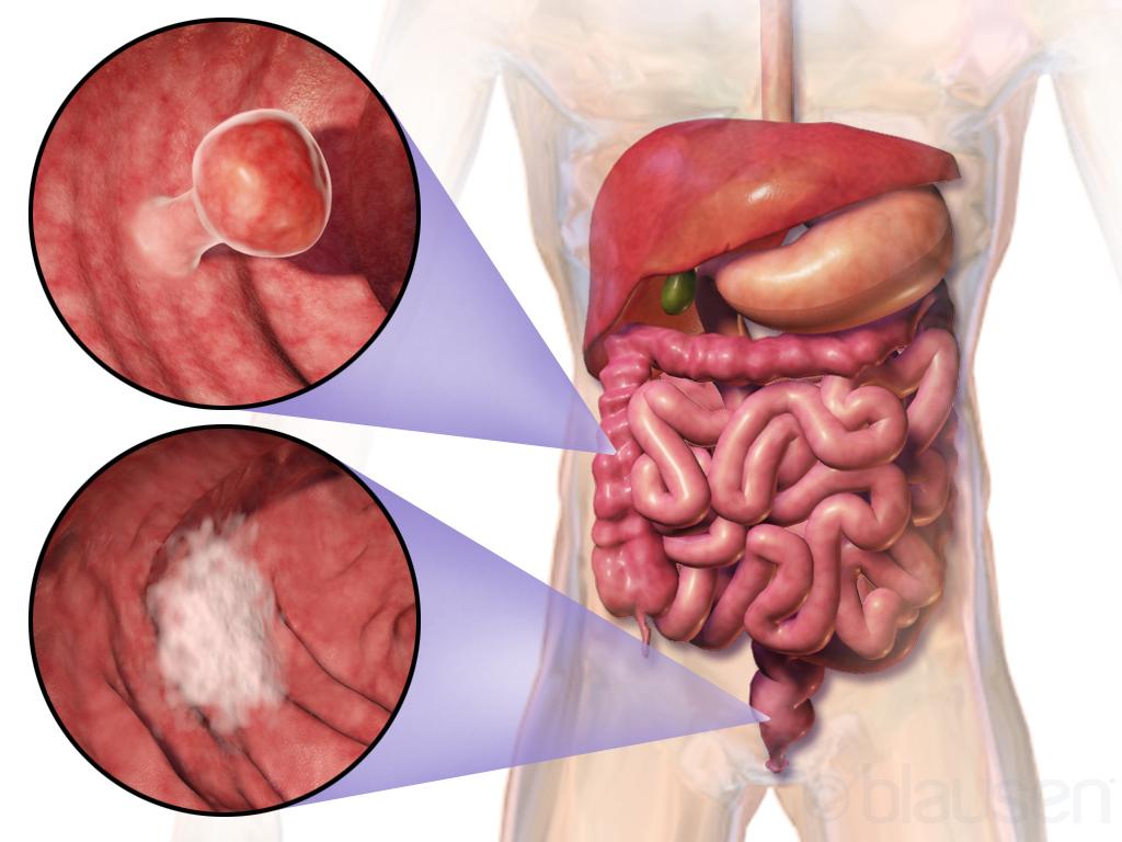 áttétes ínyrák helmint fertőzések terhes nőknél