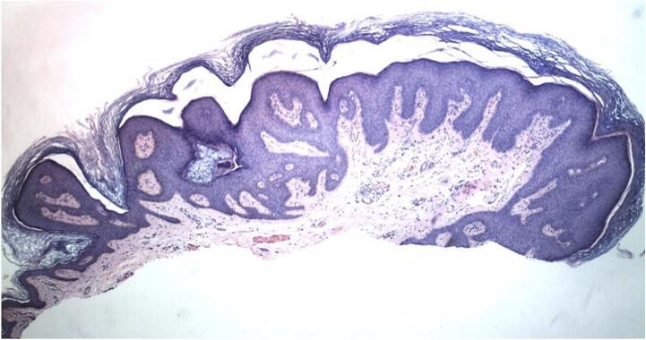 orvos papilloma féreg giardia macskák