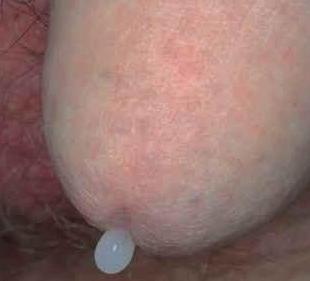 a húgycső genitális szemölcsei a férfiaknál