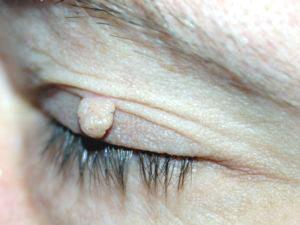 anthelmintikus terhesség alatt több szemölcs