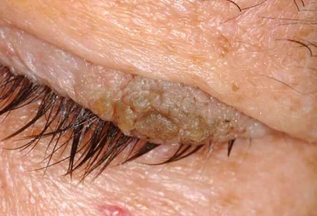 parazita fertőzés papillómával